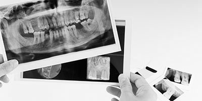 Oral Surgery & Dental Implants